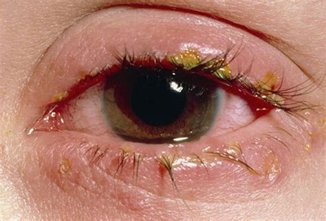 will bacterial pink eye reside picture 17