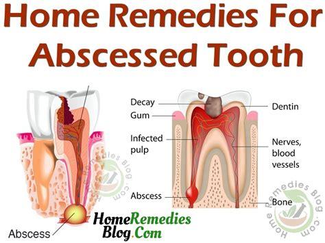 gum pain relief picture 9