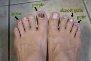 yellow thick toenail picture 2