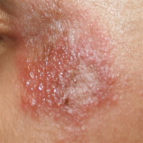 cause of pimple growths on the lips picture 5