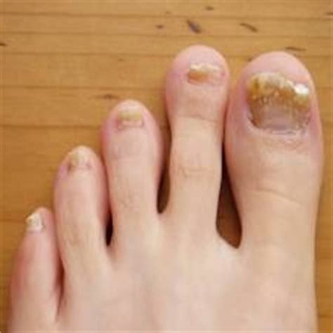 acrylic nail fungus symptoms picture 7