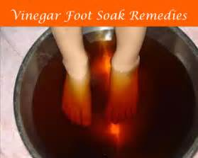 vinegar help cure toenail fungus picture 6