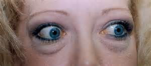 eye problem thyroid picture 5