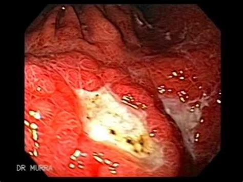 gastrointestinal malt lymphoma and crohn's disease picture 3