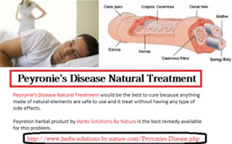 peyronies disease treatment south africa picture 2