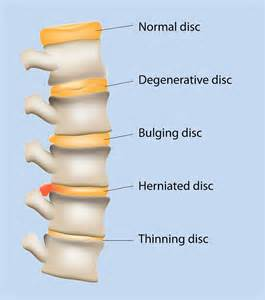 disc pain relief picture 6