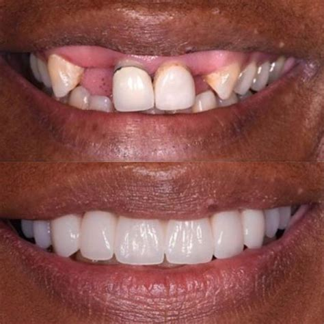 los angeles tooth crown picture 10