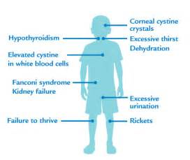 causes of hypothyroidism picture 13