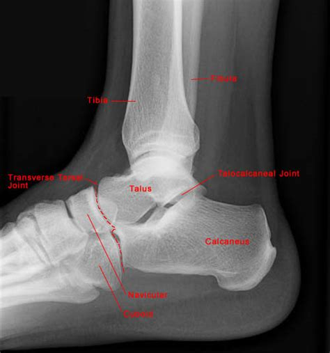 lisfranc joint picture 7