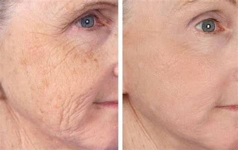 co2 laser treatment for acne scar picture 6