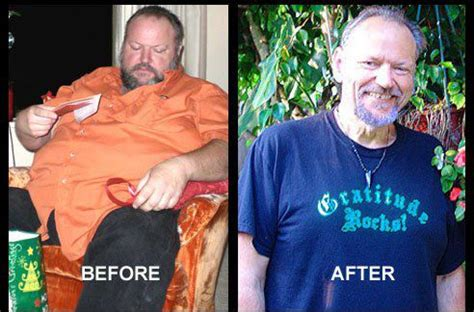 weight loss and colon cancer picture 10