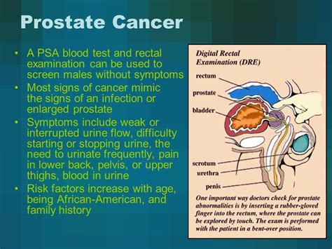 Prostate cancer blood test picture 5