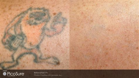 dr walker tattoo removal solution picture 7