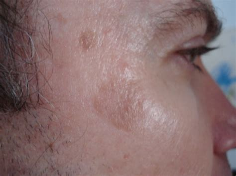 skin cancer attenant caratosis picture 6