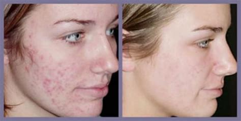 solution for acne scars picture 5