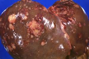 lesions on the liver picture 6