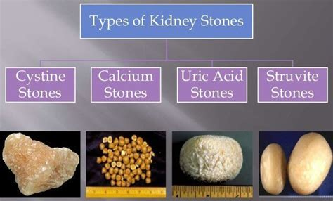 urinary tract infections kyu hota h picture 13