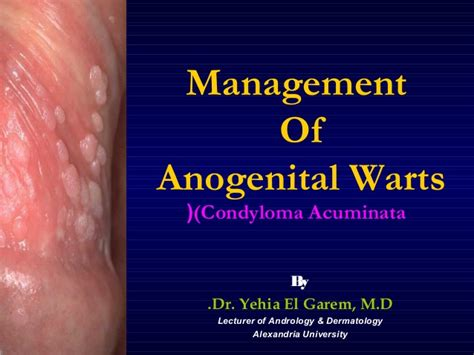 anogenital warts picture 1