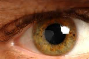 high blood pressure eye sight picture 3