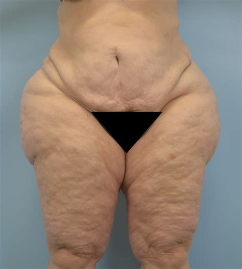 ssbbw dimpled cellulite picture 10