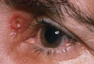 eye herpes photo picture 13