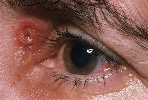 herpes in the eyes symptoms picture 9