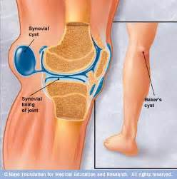 blood clots in muscle tissue picture 7