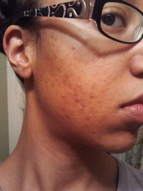 acne breakout symptoms of picture 5