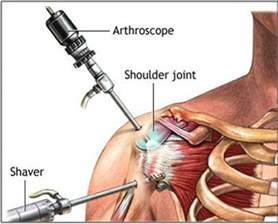 joint impingement syndrome shoulder diagnosis treatment picture 11