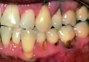 decayed teeth and bad breath picture 13