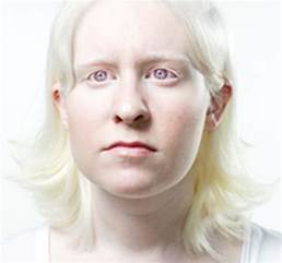 diagnosed different color pigmentation on skin picture 7