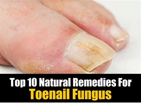 natural remedies for toenail fungus picture 2