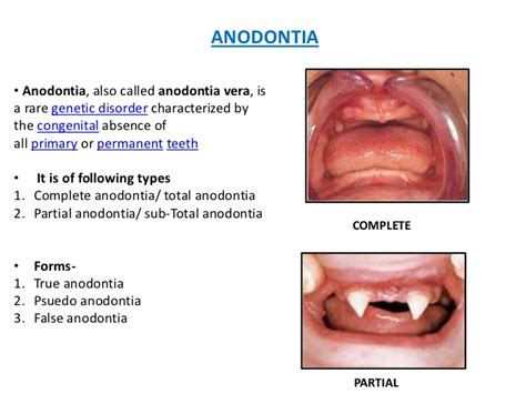genetic disorder permanent teeth picture 1
