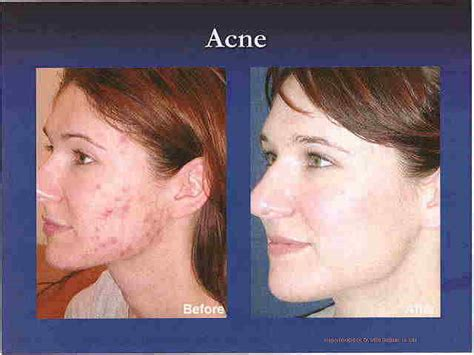 acne and lupas picture 15