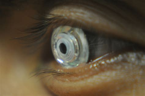 contact lens picture 7