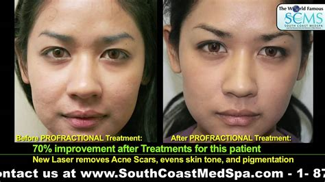 laser resurfacing pictures acne scars picture 9