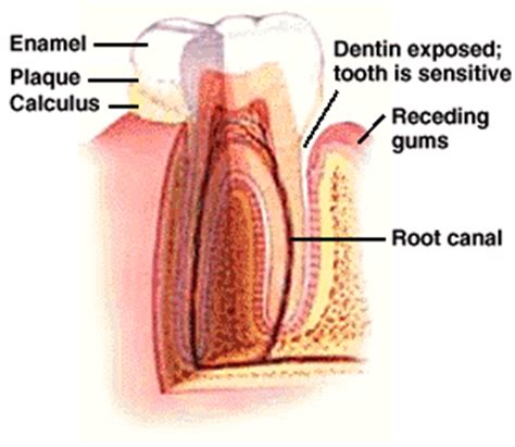 what to do for sensitive teeth picture 7