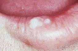 leukoplakia in the mouth lips picture 9