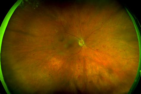 california diabetic retinopathy picture 1