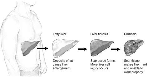 liver failure progression picture 7