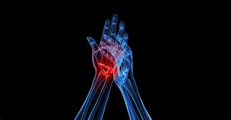 arthritis joint pain picture 7