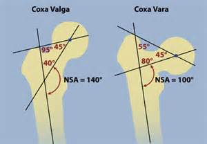 coxa vulga of hip joint picture 19