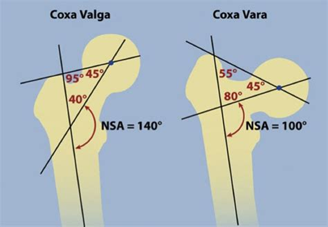 coxa vulga of hip joint picture 21