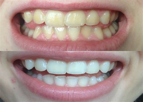 children how to whiten yellow teeth picture 1
