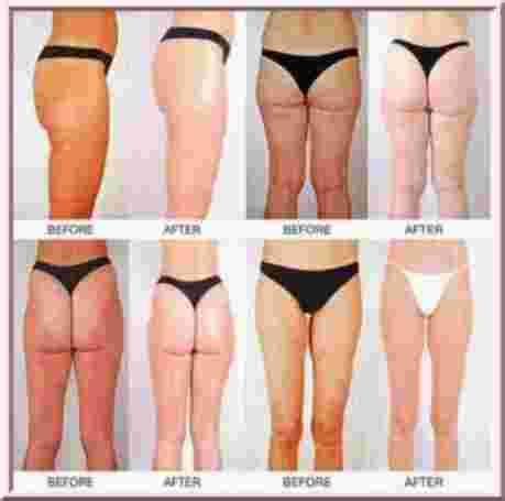 what are the frequencies for cellulite picture 1