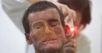 what is le cerbvas disease picture 11