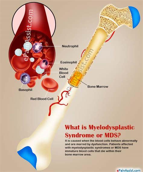 el cancer symptoms disorder picture 7