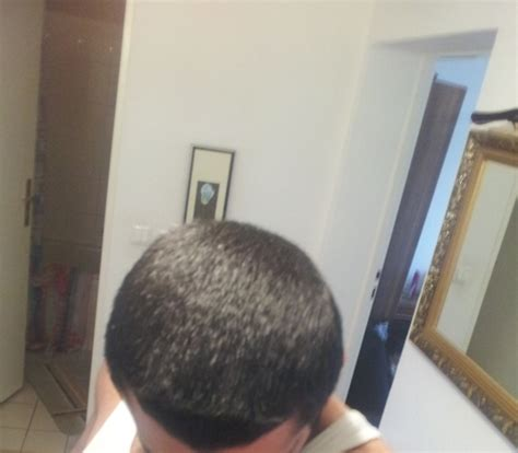 can msm cause hair loss picture 6