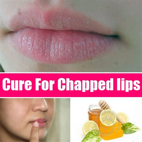 cure for dry lips picture 3