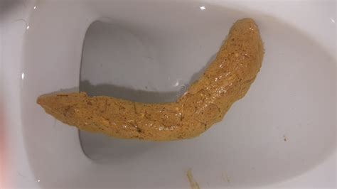 undigested food in bowel movements picture 5